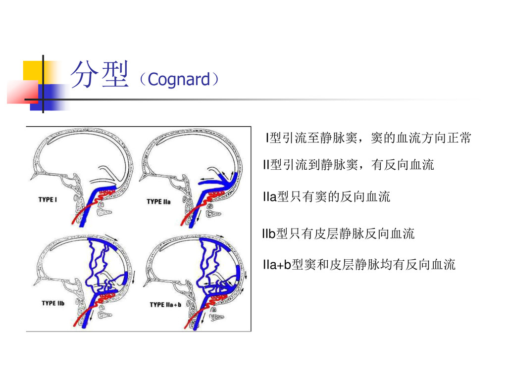 分型(Cognard) I型引流至静脉窦,窦的血流方向正常 II型引流到静脉窦,有反向血流 I...