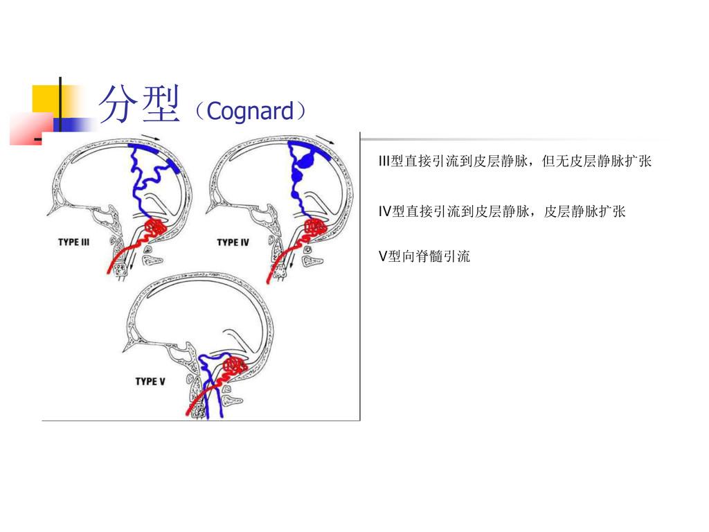 分型(Cognard) III型直接引流到皮层静脉,但无皮层静脉扩张 IV型直接引流到皮层静脉...