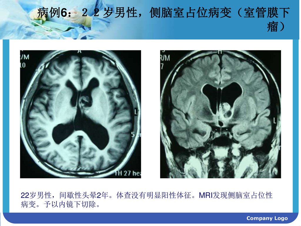 Company Logo 病例6:22岁男性,侧脑室占位病变(室管膜下 瘤) 22岁男性,间歇...