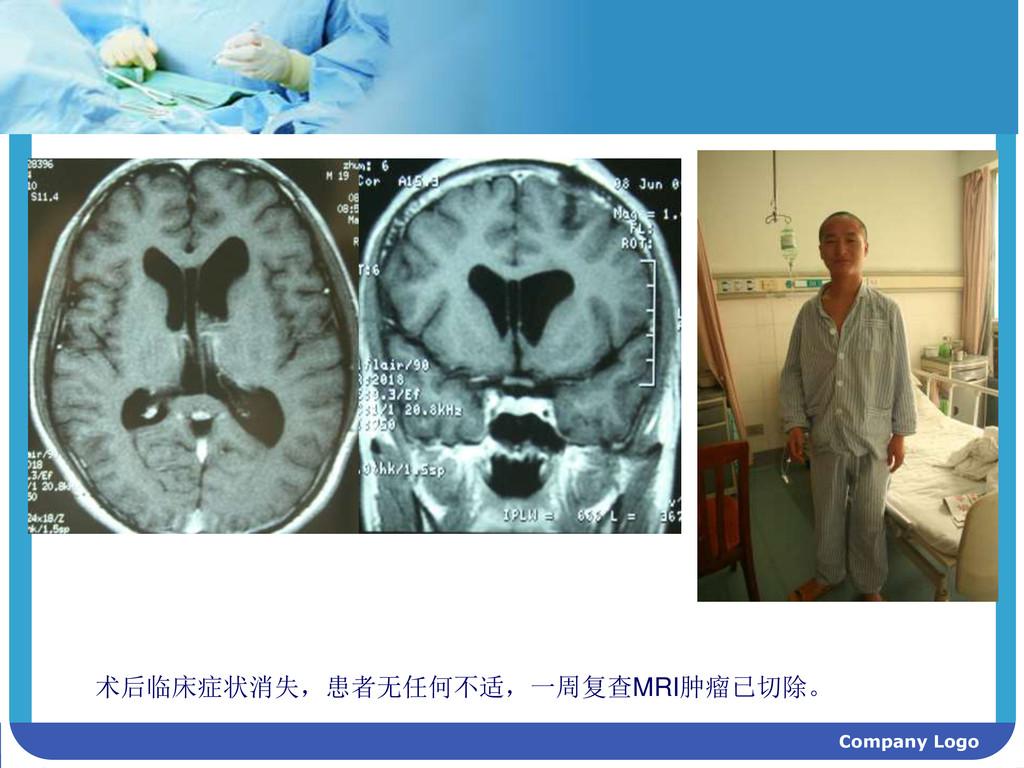 Company Logo 术后临床症状消失,患者无任何不适,一周复查MRI肿瘤已切除。