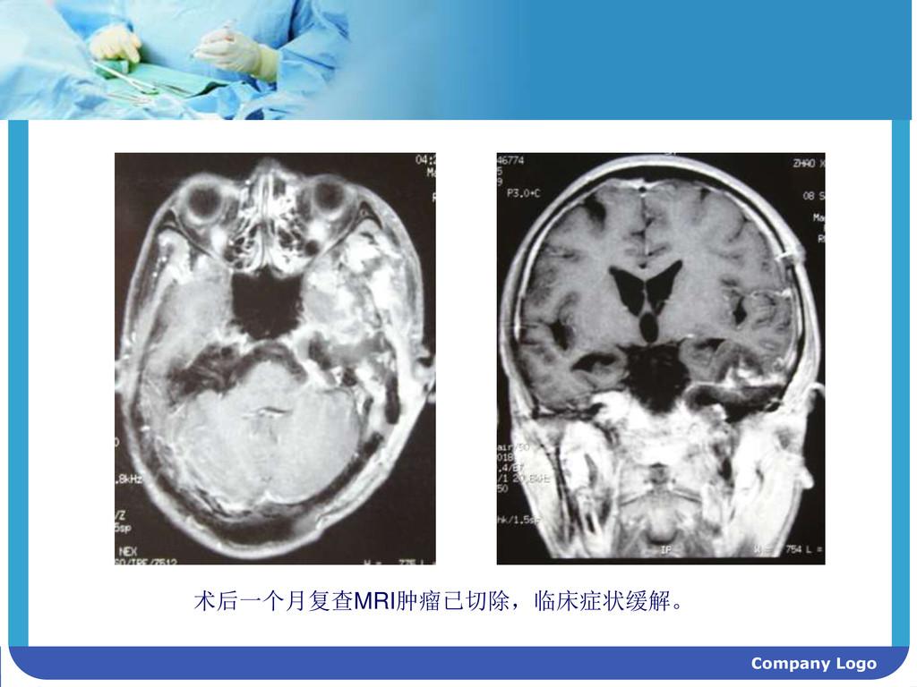 Company Logo 术后一个月复查MRI肿瘤已切除,临床症状缓解。