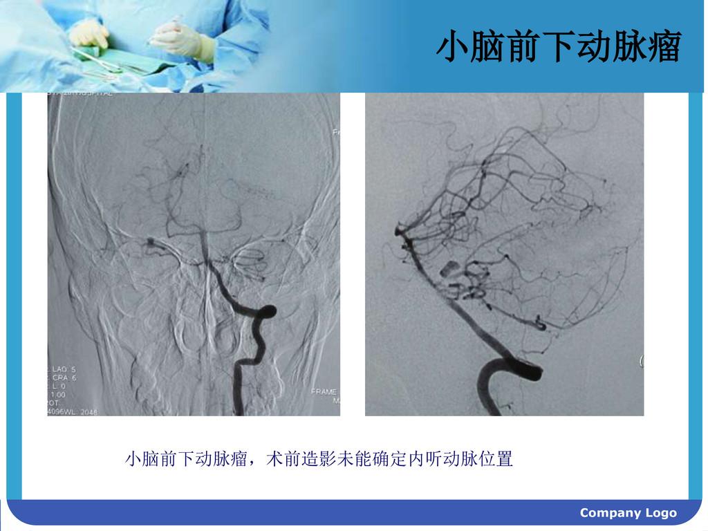 Company Logo 小脑前下动脉瘤 小脑前下动脉瘤,术前造影未能确定内听动脉位置