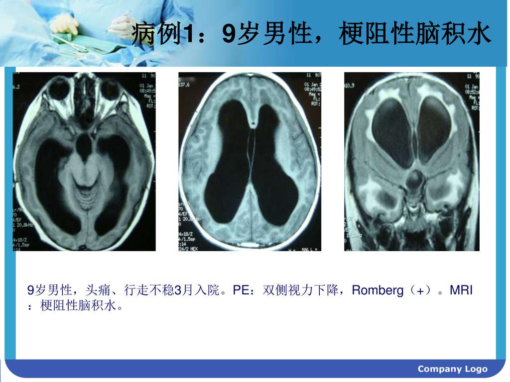Company Logo 病例1:9岁男性,梗阻性脑积水 9岁男性,头痛、行走不稳3月入院。P...