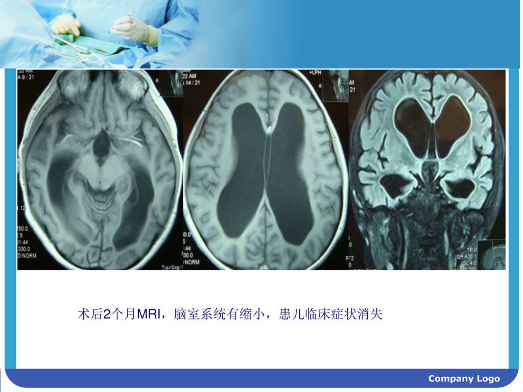 Company Logo 术后2个月MRI,脑室系统有缩小,患儿临床症状消失