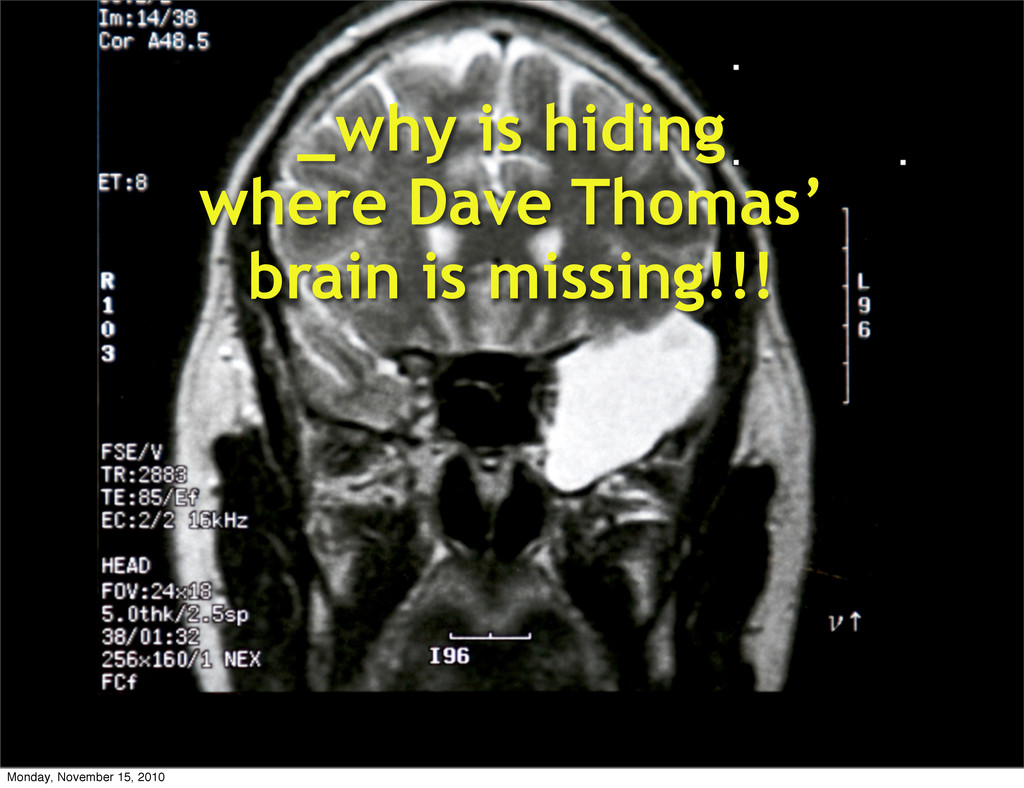 _why is hiding where Dave Thomas' brain is miss...