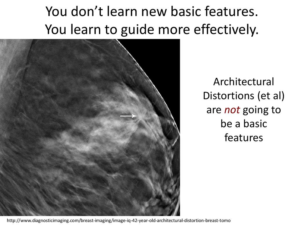 http://www.diagnosticimaging.com/breast-imaging...