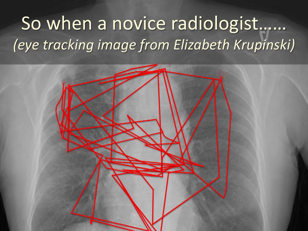 So when a novice radiologist…… (eye tracking im...