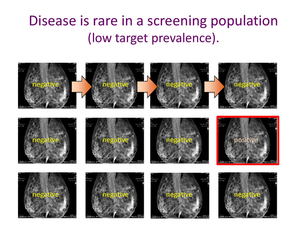 Disease is rare in a screening population (low ...