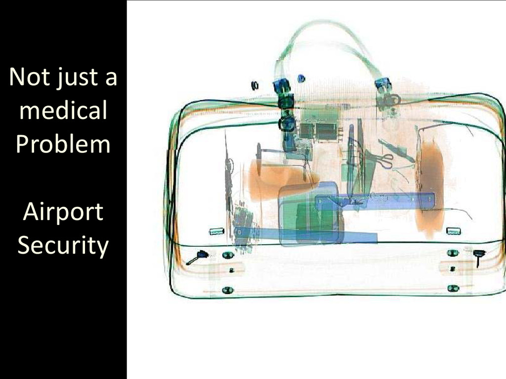 Not just a medical Problem Airport Security