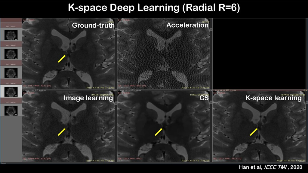 K-space Deep Learning (Radial R=6) Ground-truth...