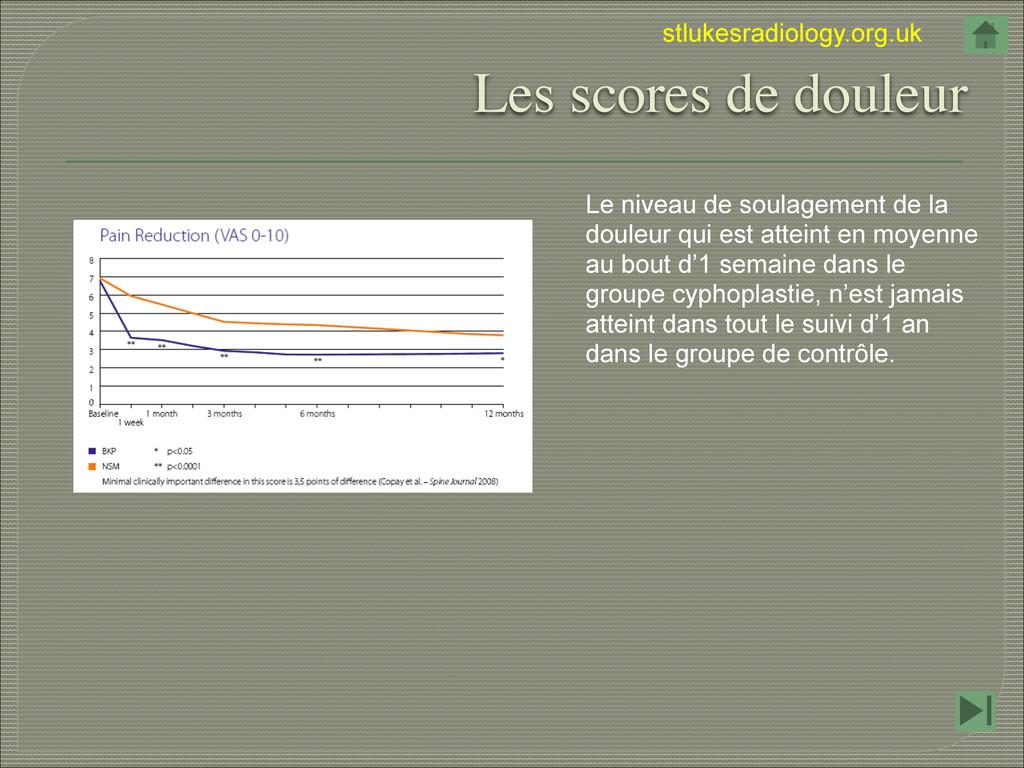 stlukesradiology.org.uk Les scores de douleur L...