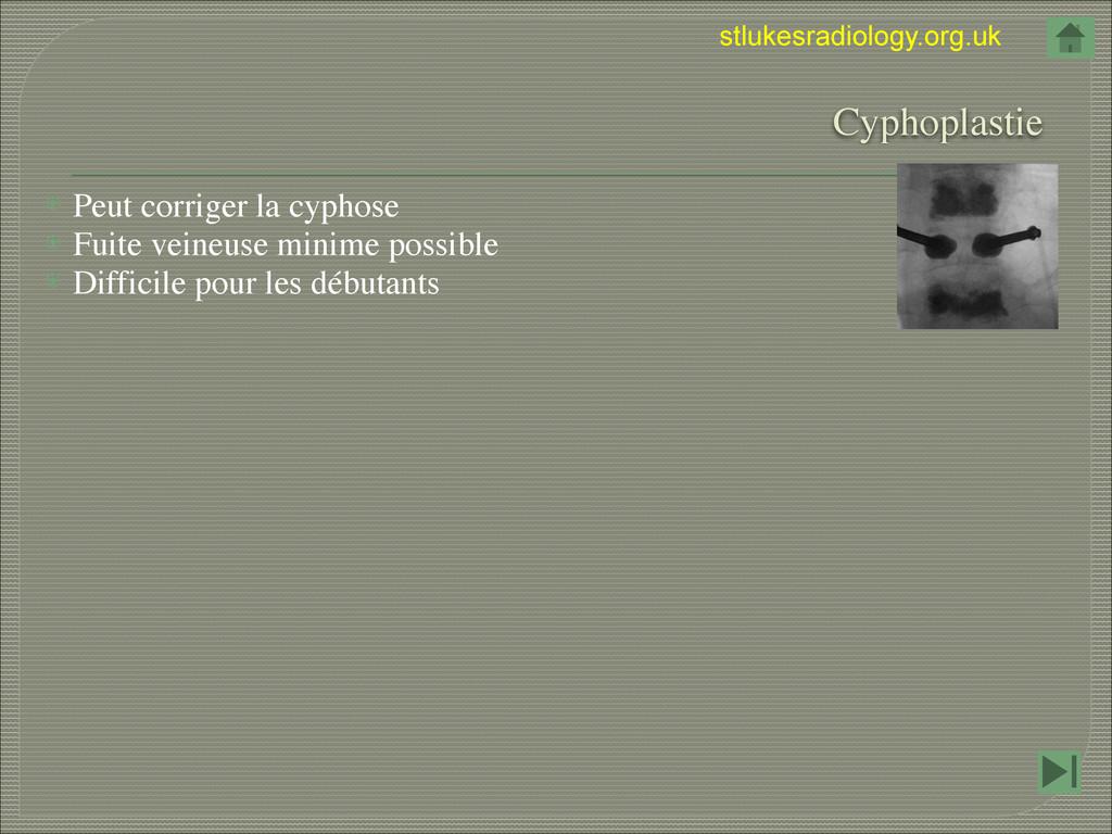 stlukesradiology.org.uk  Cyphoplastie ⦿ Peut c...
