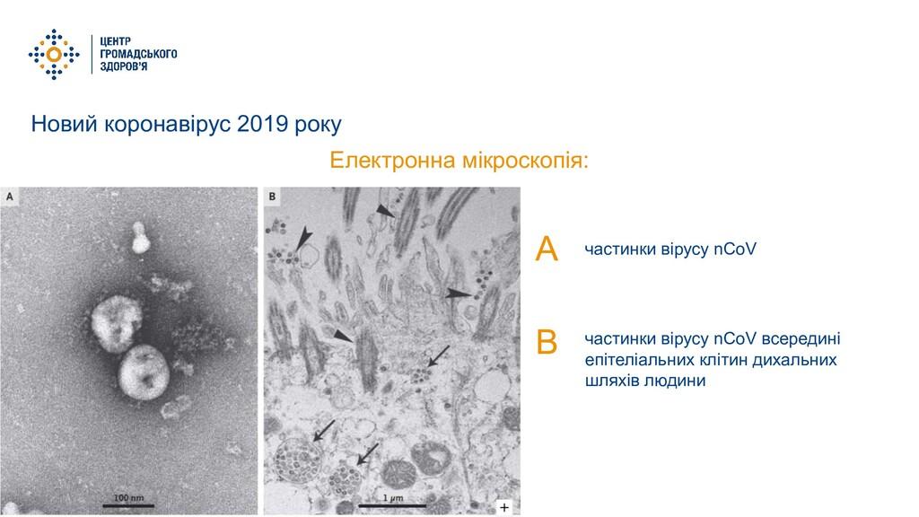 Новий коронавірус 2019 року Електронна мікроско...