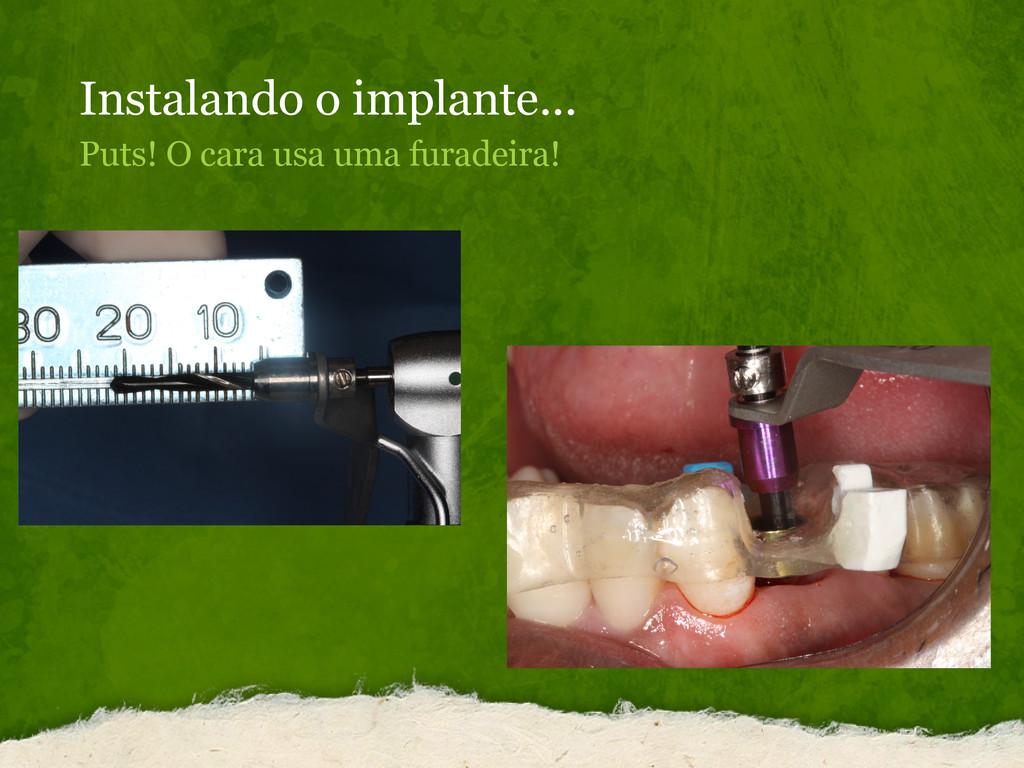Instalando o implante... Puts! O cara usa uma f...