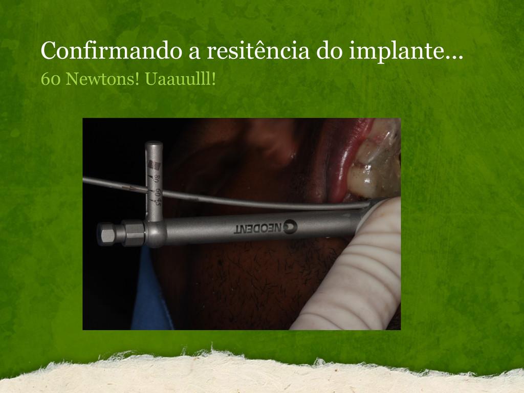 Confirmando a resitência do implante... 60 Newt...