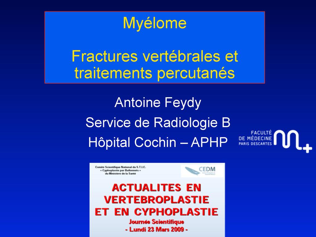 Myélome Fractures vertébrales et traitements pe...