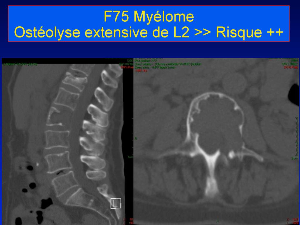 F75 Myélome Ostéolyse extensive de L2 >> Risque...