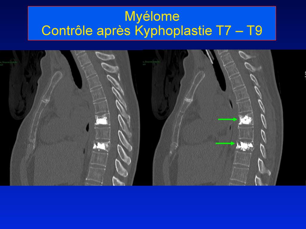 Myélome Contrôle après Kyphoplastie T7 – T9