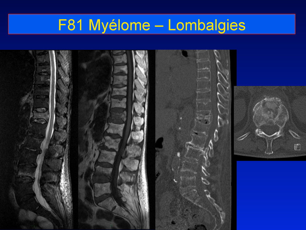 F81 Myélome – Lombalgies