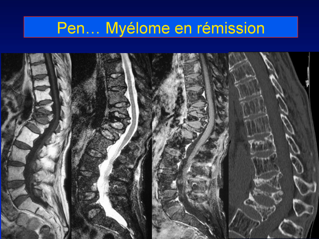 Pen… Myélome en rémission