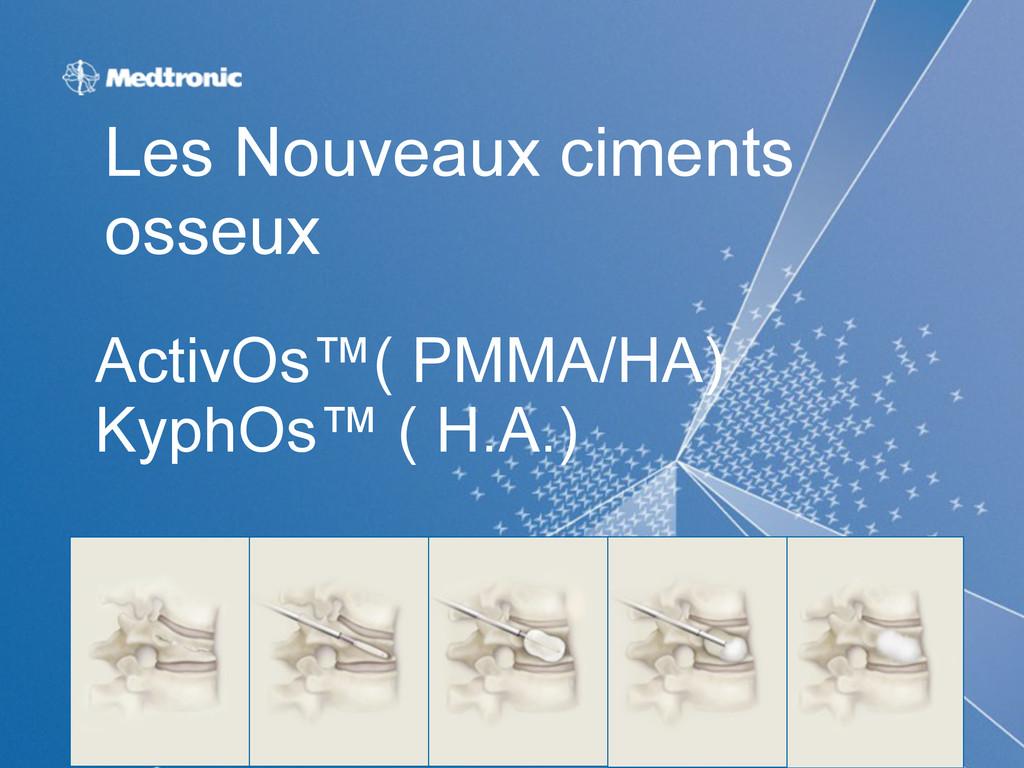 ActivOs™( PMMA/HA) KyphOs™ ( H.A.) Les Nouveaux...