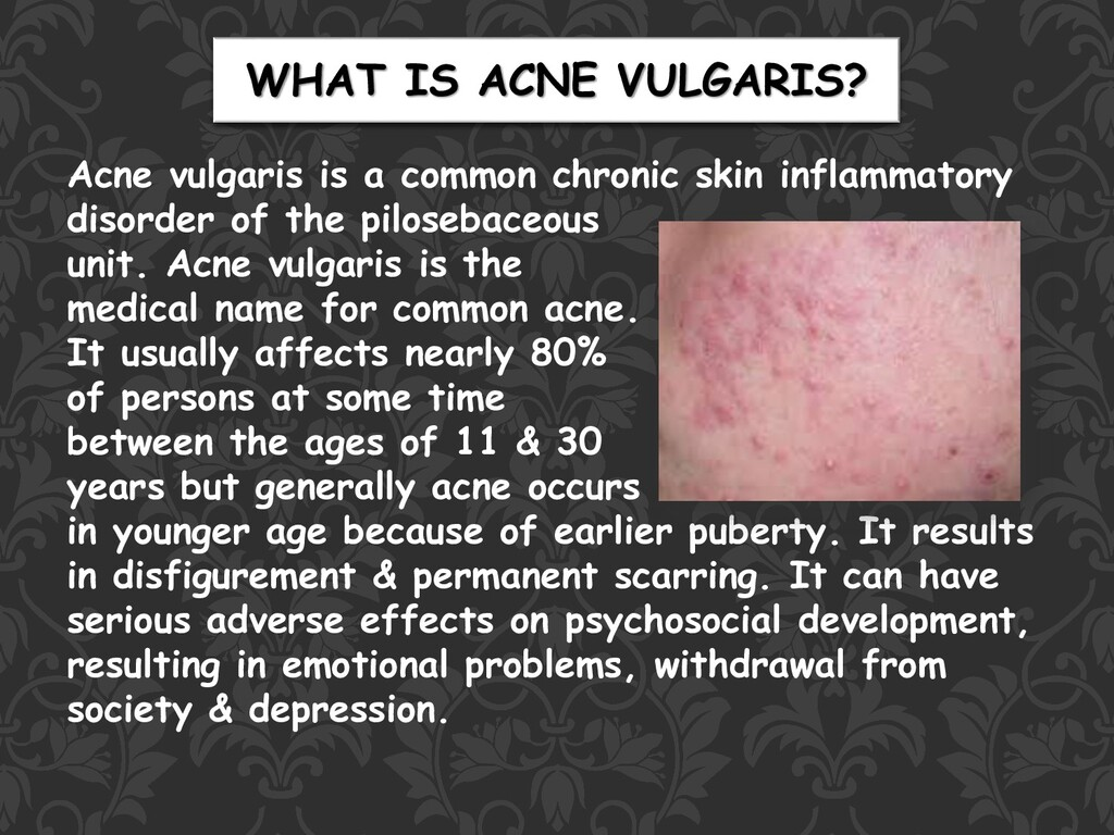 WHAT IS ACNE VULGARIS? Acne vulgaris is a commo...