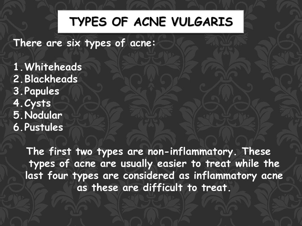 There are six types of acne: 1.Whiteheads 2.Bla...