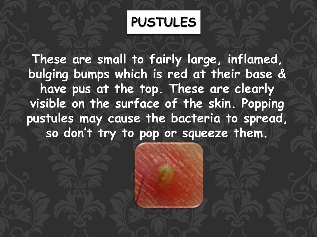 PUSTULES These are small to fairly large, infla...