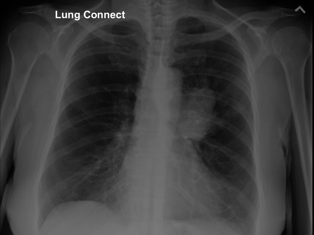 37 Lung Connect