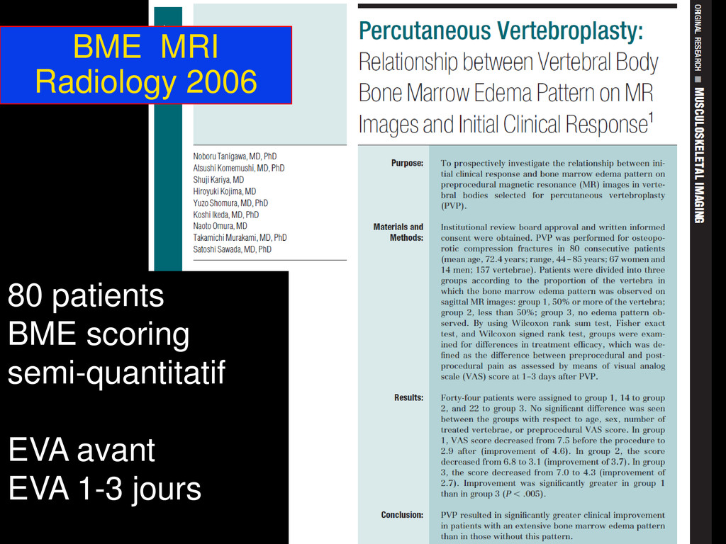 BME MRI Radiology 2006 80 patients BME scoring ...