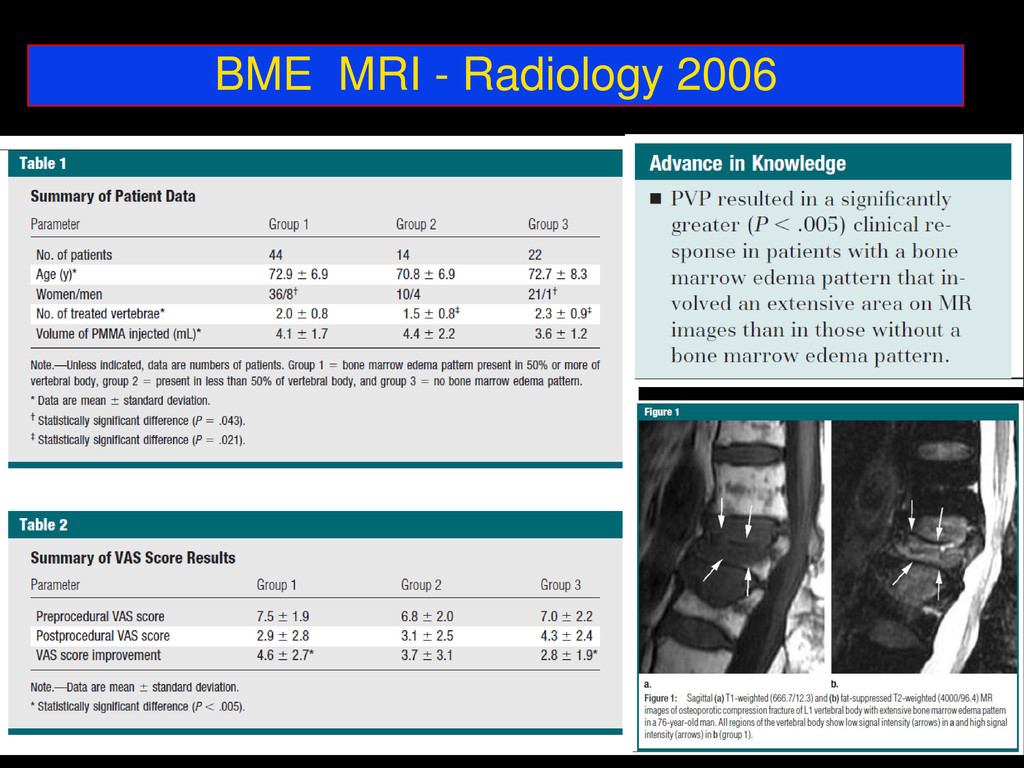 BME MRI - Radiology 2006