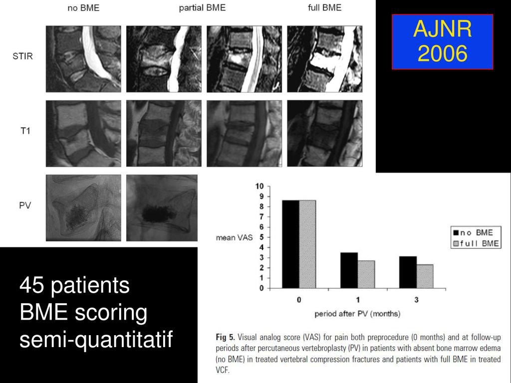AJNR 2006 45 patients BME scoring semi-quantita...