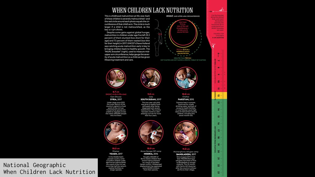 National Geographic When Children Lack Nutrition