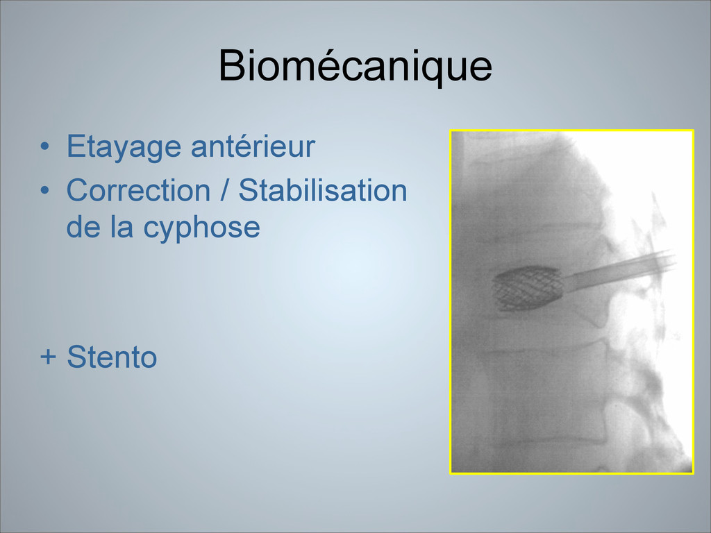 Biomécanique • Etayage antérieur • Correction /...
