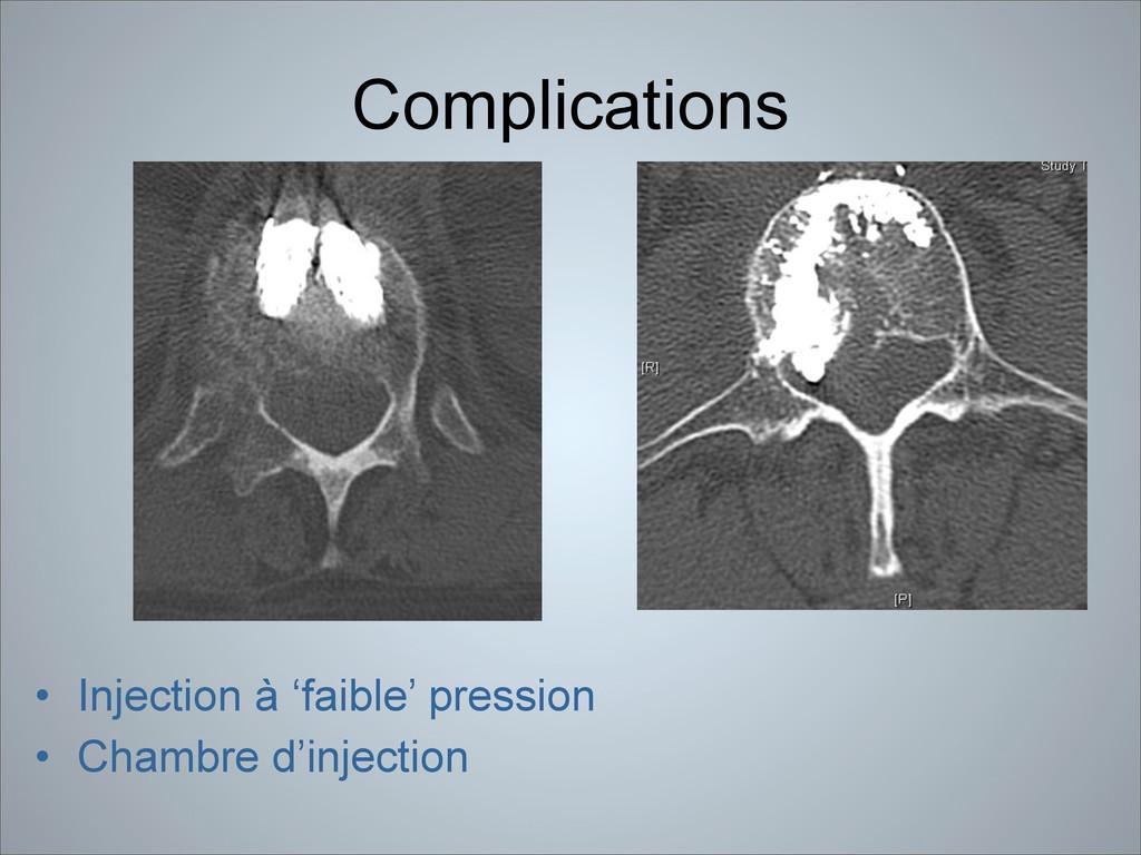 Complications • Injection à 'faible' pression •...