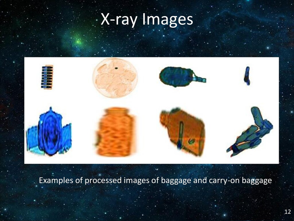 X-ray Images Examples of processed images of ba...