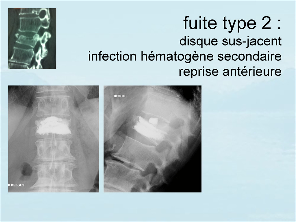 fuite type 2 :