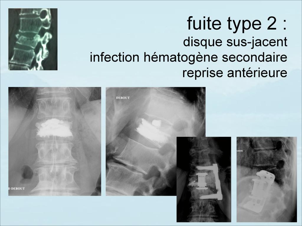 fuite type 2 : disque sus-jacent infection hé...