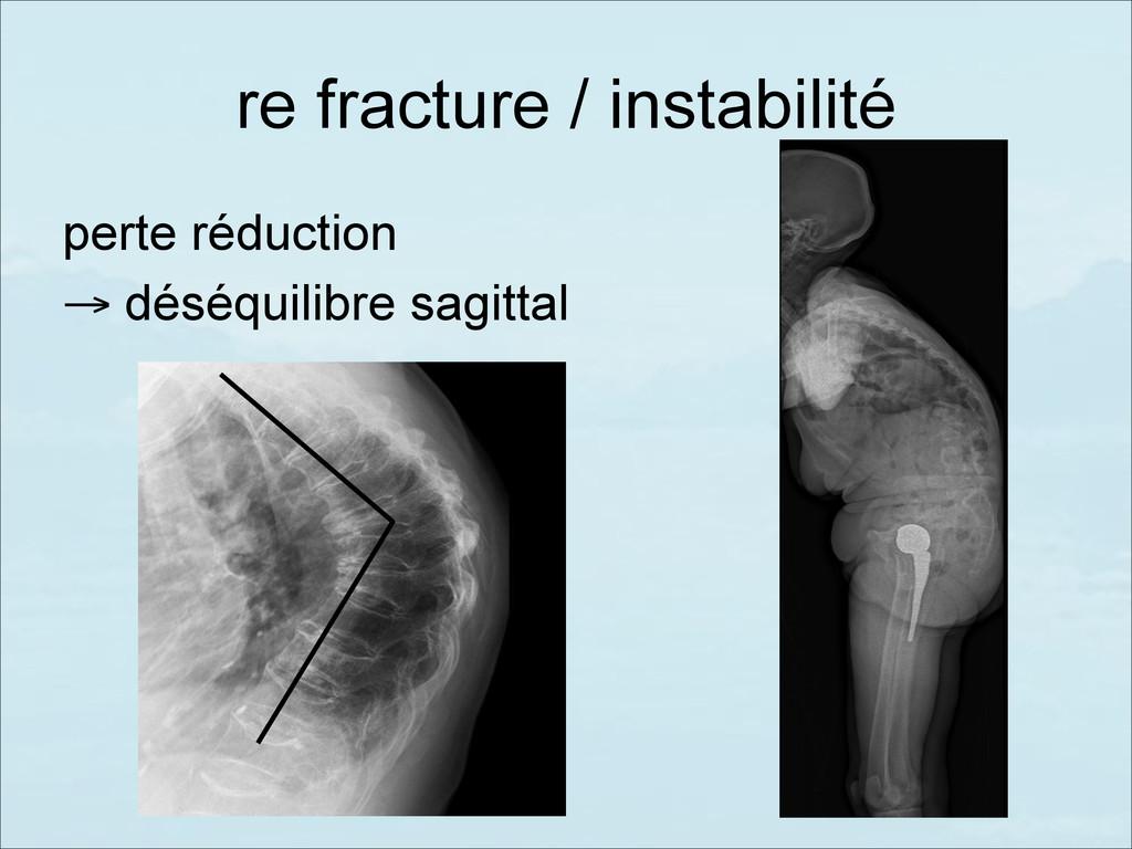 re fracture / instabilité perte réduction → dés...