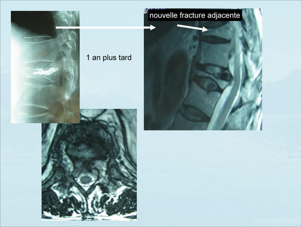 nouvelle fracture adjacente 1 an plus tard