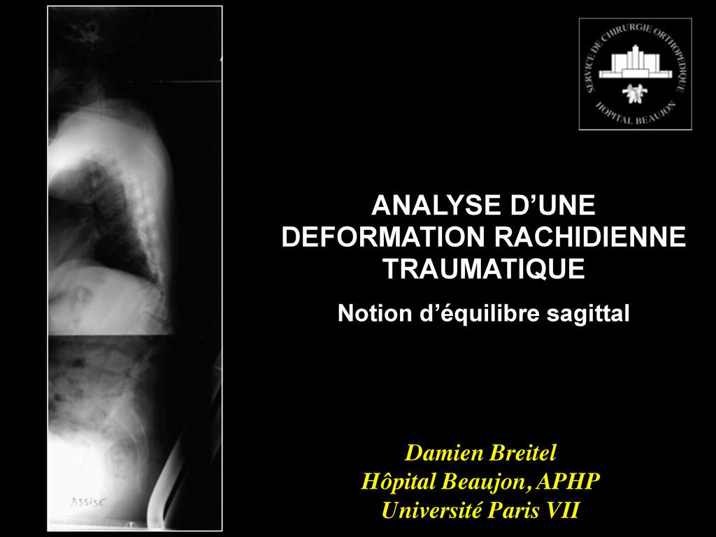 ANALYSE D'UNE DEFORMATION RACHIDIENNE TRAUMATIQ...