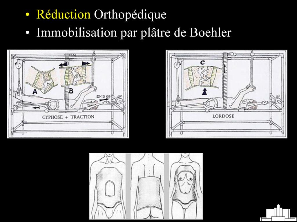 • Réduction Orthopédique • Immobilisation par p...