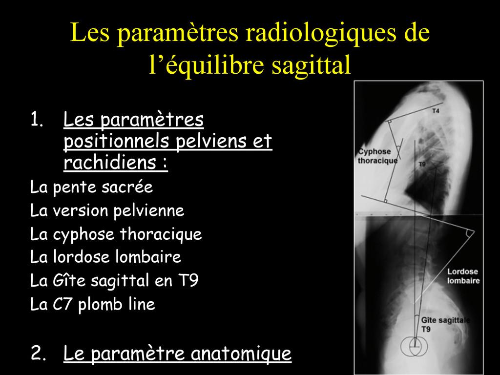 Les paramètres radiologiques de l'équilibre sag...