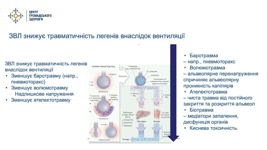 ЗВЛ знижує травматичність легенів внаслідок вен...
