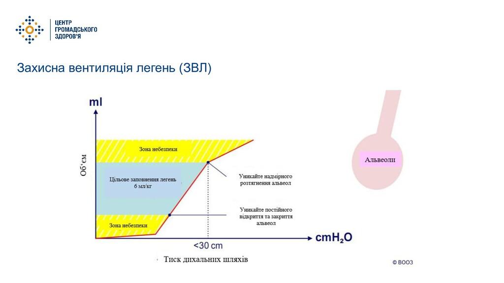 Захисна вентиляція легень (ЗВЛ)