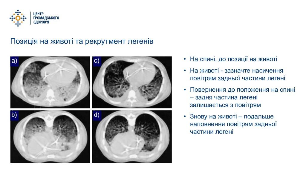 Позиція на животі та рекрутмент легенів • На сп...
