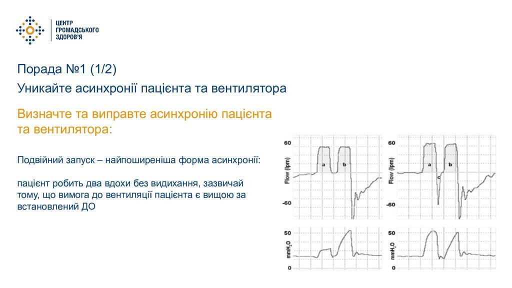 Порада №1 (1/2) Уникайте асинхронії пацієнта та...