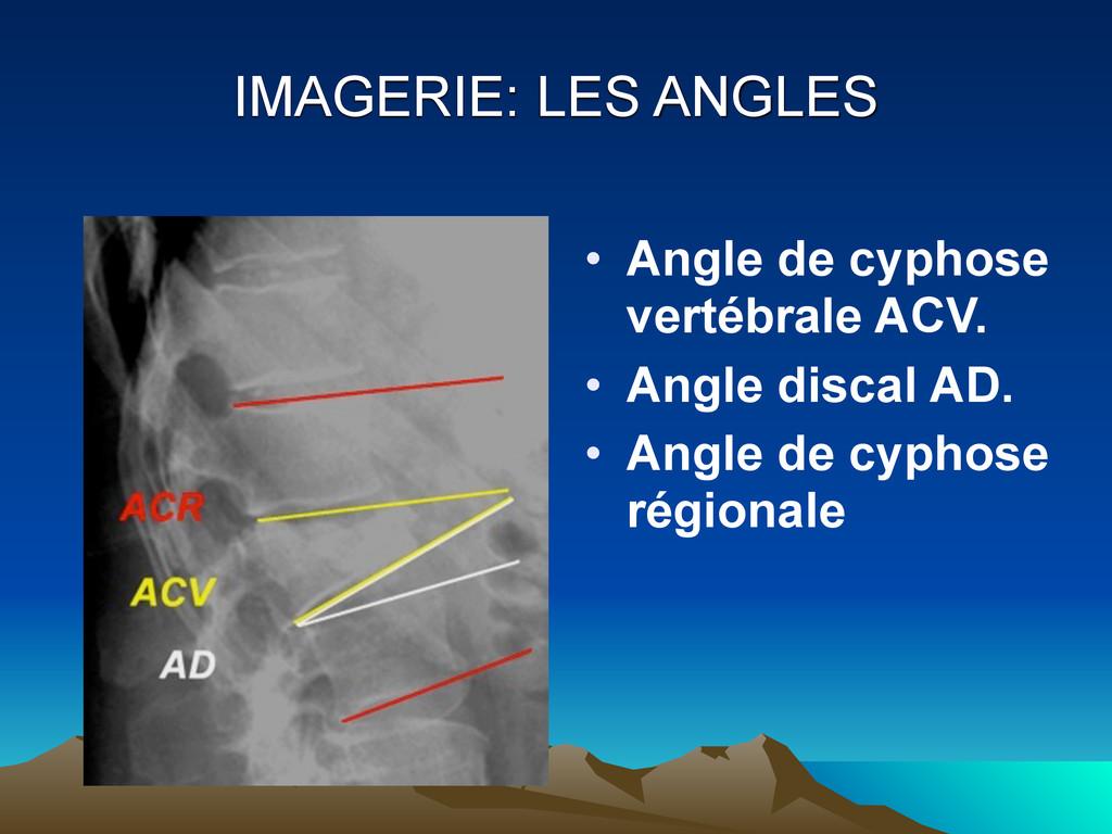 IMAGERIE: LES ANGLES • Angle de cyphose vertébr...