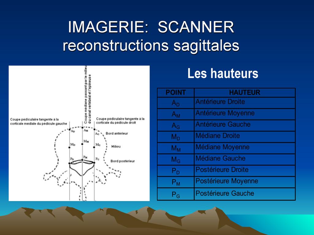 IMAGERIE: SCANNER reconstructions sagittales Le...