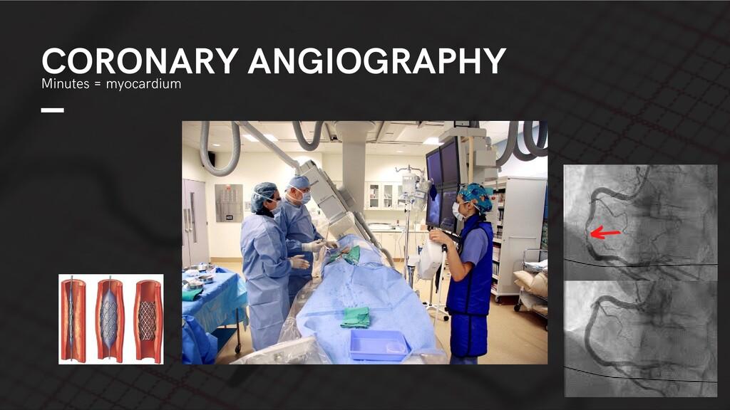 CORONARY ANGIOGRAPHY Minutes = myocardium